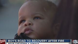 Operation FireHEAT brings gifts to baby burned in fire - Video