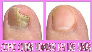 Hongos en las uñas delos pies - Video
