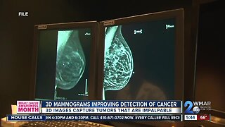 3D Mammogram detects local woman's stage 1 breast cancer