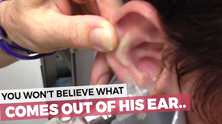 This Kid Has The Nastiest Ears You'll Ever See - Video