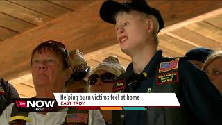 East Troy burn camp gives kids opportunity for acceptance - Video