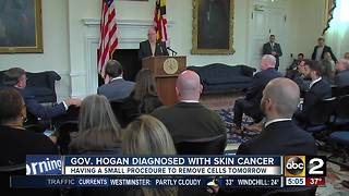 Governor Hogan announces he's being treated for skin cancer - Video