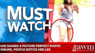 She Shares A Picture-Perfect Photo Online, But Then Strangers Notice Her Leg Looks Strange - Video
