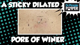Dr Pimple Popper: A Sticky Dilated Pore of Winer - Video