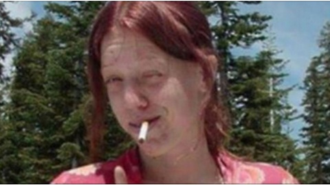 Meth Addict Shares Photo Of Transformation After Becoming Sober, Looks Unrecognizable