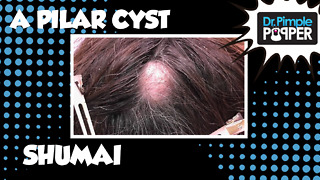 A Pilar Cyst Shumai - Video