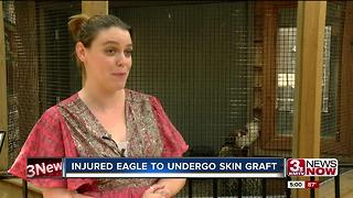 Injured eagle to undergo skin graft - Video