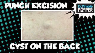Punch removal of a Cyst on back - Video