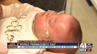 Born at 21 weeks & 6 days, KC baby defies the odds - Video