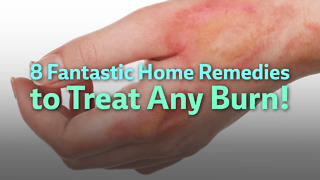 Home Remedies for Burns - Video