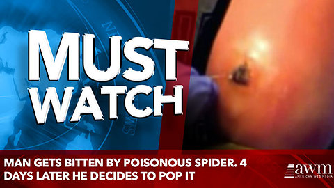 Man Gets Bitten By Poisonous Spider. 4 Days Later He Decides To Prick The Area With A Needle