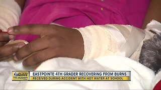 Eastpointe fourth grader recovering from burns after accident at school