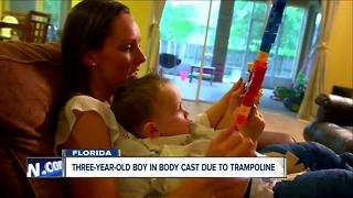 Florida mom speaks out after her toddler got injured at a trampoline park - Video