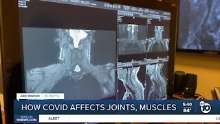 In-Depth: How COVID-19 affects joints, muscles