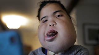 Teenager With Facial Tumour Proves Doctors Wrong | BORN DIFFERENT - Video