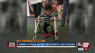 Family's plea after prosthetic leg stolen