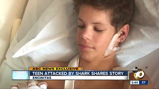 Teen attacked by shark shares story - Video