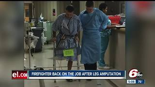 Fishers firefighter back on the jobs after leg amputation - Video