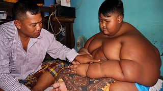 Indonesian boy who once weighed 192 kilos undergoes surgery to lose weight - Video