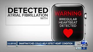 Study: Apple Watch may help doctors spot heart condition - Video