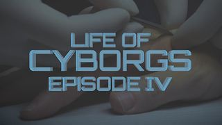 Life of Cyborgs: Watch how an implant is done - Video