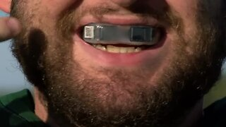 Mouth guard technology detects head impacts, concussions