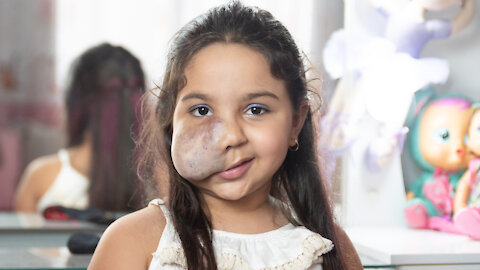 6-Year-Old With Facial Tumour Gives Make-Up Tutorials   BORN DIFFERENT