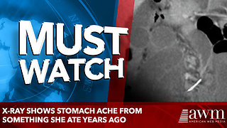 X-Ray Shows stomach ache From Something She Ate Years Ago - Video