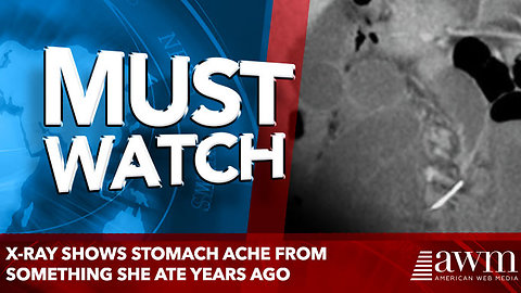 X-Ray Shows stomach ache From Something She Ate Years Ago