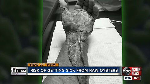 Summer a risky time to eat oysters: What you need to know