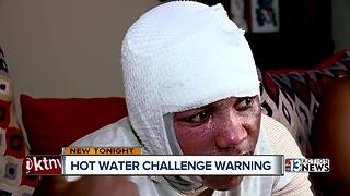 Las Vegas doctor sounds alarm about 'hot water challenge' - Video