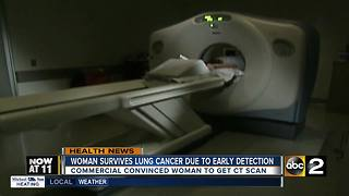 CT scan helps local woman detect lung cancer early - Video