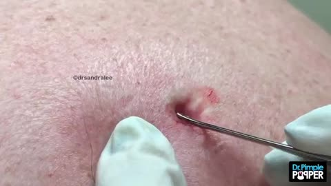 FINALLY, a Dilated Pore of Winer!