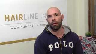 scalp micropigmentation for balding - Video