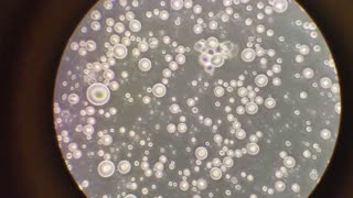 Breast milk under a microscope shows incredible sight - Video