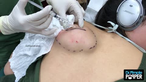 Part 1- A Pancake-Sized Lipoma on the Back with Dr Pimple Popper