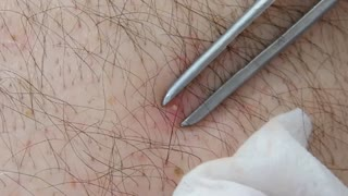 Extrude the pimple  - Video