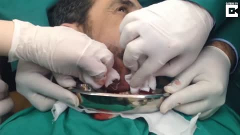 Surgeon Pops Huge Abscess On Man's Jaw