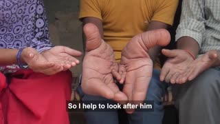 The Boy With Giant Hands - Born Different - Video