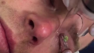 One Reason Why Eyelid Tattoos Are a Bad Idea - Video