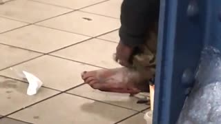 Person scratching ashy foot subway station