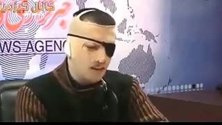 Iranian acid attack victim shares his story