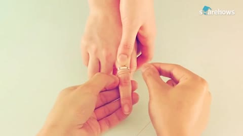 removing rings from the hand