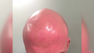 scalp micropigmentation - Video