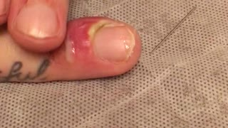 Draining a Fingernail Infection - Video