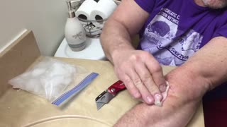 Father Son Bonding Time Cutting of a Cyst - Video