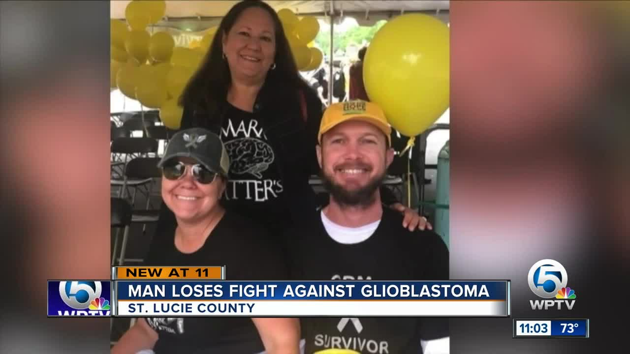Man loses fight against glioblastoma