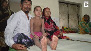 Bangladeshi Boy Shows Miraculous Recovery - Video