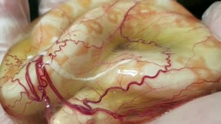 Incredible Footage Shows Newborn Boa Constrictor Still In Amniotic Sac - Video