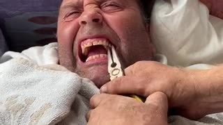 Man Pulls His Buddy's Loose Tooth Out During Quarantine